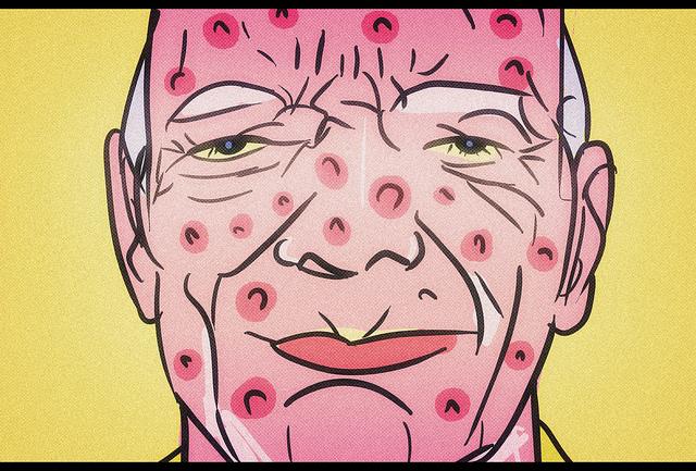 Homme ayant des boutons d'acné sur le visage